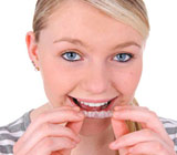 clear-orthodontic-aligners6