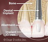 dental-implants13